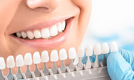 Porcelain Veneers | Creditview Dental | Mississauga Dentist